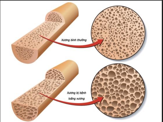 Tình trạng loãng xương gây ảnh hưởng lớn tới sức khỏe