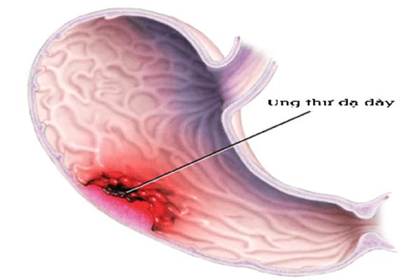 Bệnh ung thư dạ dày sống được bao lâu bạn có biết