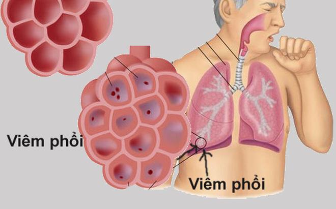 Dấu hiệu viêm phổi rất nặng