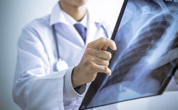 Triệu chứng bệnh viêm phổi và cách phòng ngừa